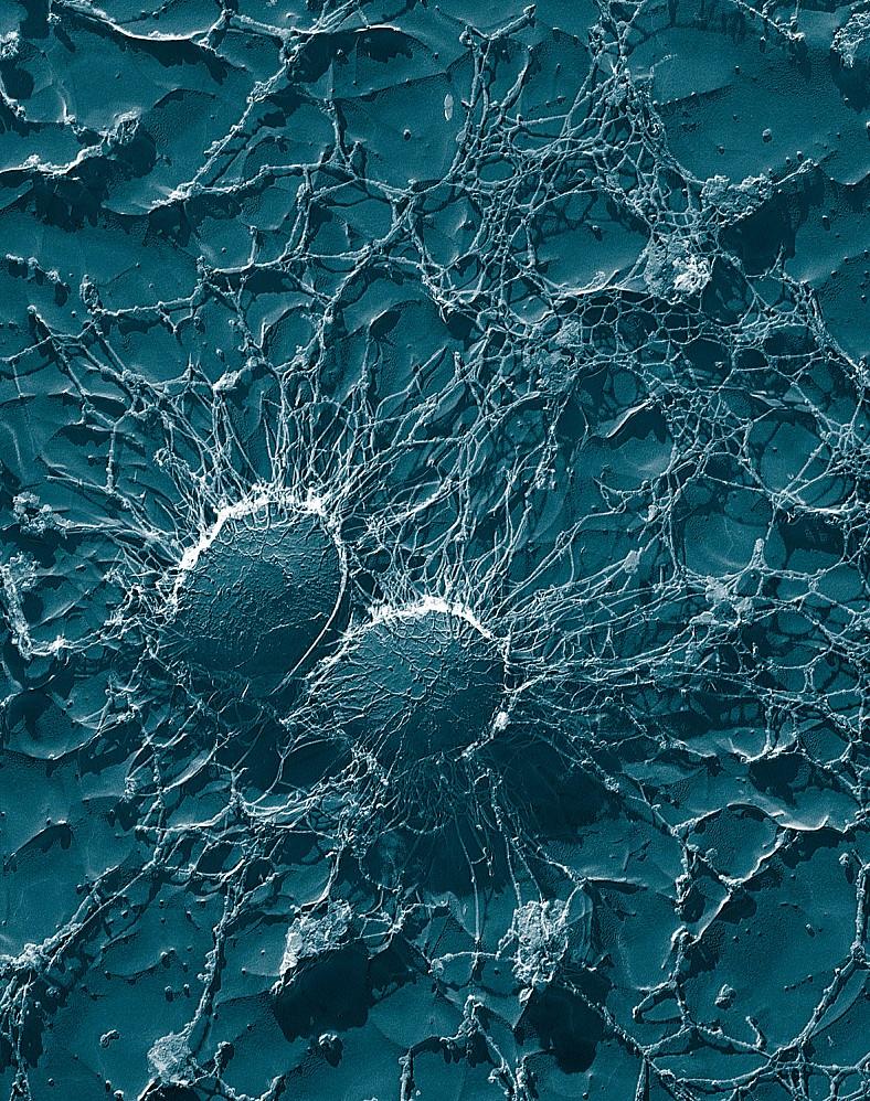 Бактерии рода стафилококк